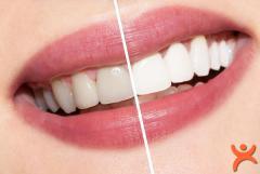 En Doğal Diş Beyazlatma Yöntemleri