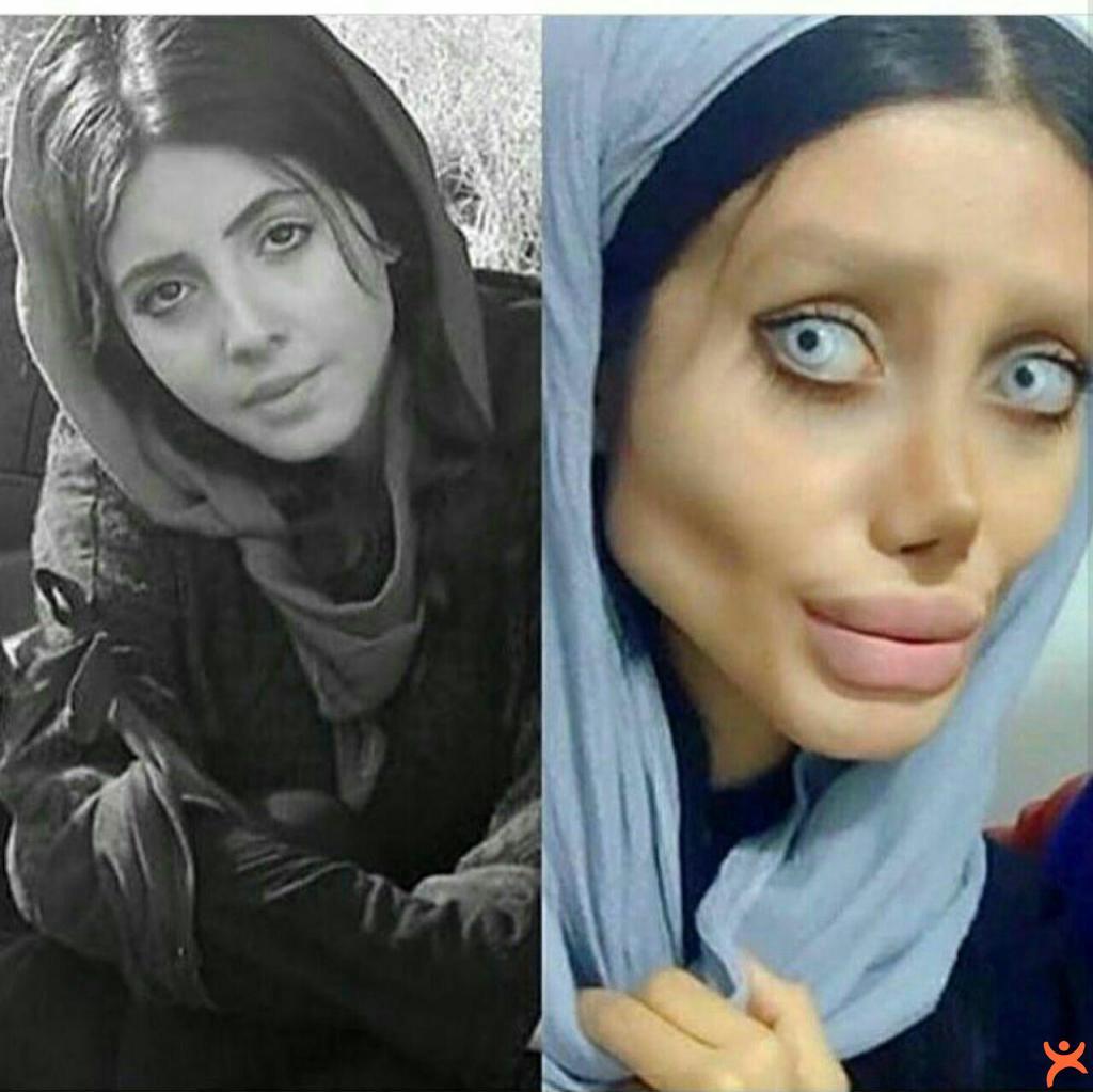 Angelina Jolie'ye Benzeyeyim Derken!